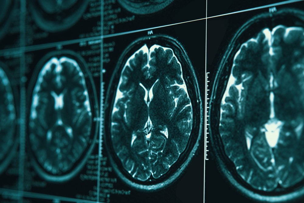 Work-related head and brain injuries can end your career